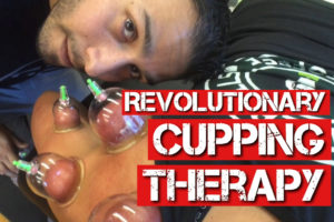 Revolutionary Myofascial Decompression: Cupping Therapy