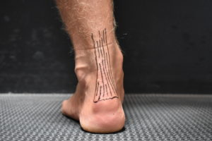 How To Beat Achilles Tendonitis
